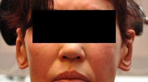 Patsient-4.-Otoplastika-+-kõrvade-vähendamine-peale