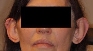 Patsient-4.-Otoplastika-+-kõrvade-vähendamine.-Enne-operatsiooni